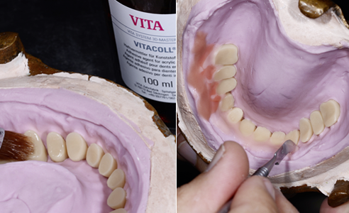Fig. 11: VITAPAN EXCELL y LINGOFORM se acondicionaron con VITACOLL para garantizar una buena adhesión a la base. Fig. 12: Se personalizó el escudo vestibular con varias capas de resina en diversos colores gingivales.