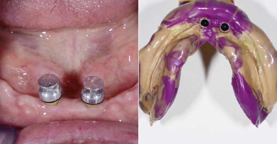 Fig. 2: Se insertaron dos implantes en la región incisal, a fin de estabilizar funcionalmente la rehabilitación en el  maxilar inferior. Fig. 3: Mediante una cubeta personalizada se tomó una impresión de fijación mucodinámica en el maxilar inferior.