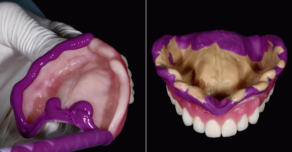 Fig. 8: Tras la prueba en boca, se tomó en el maxilar superior una impresión mucodinámica con el montaje. Fig. 9: La impresión mucodinámica final conforme a la oclusión en la base de prótesis duplicada.