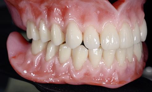 Fig. 14: Las rehabilitaciones terminadas, en oclusión estática tras el acabado y el pulido.