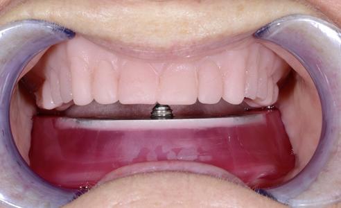 Fig. 5: La céntrica y los movimientos de la articulación temporomandibular se registraron mediante el arco gótico.