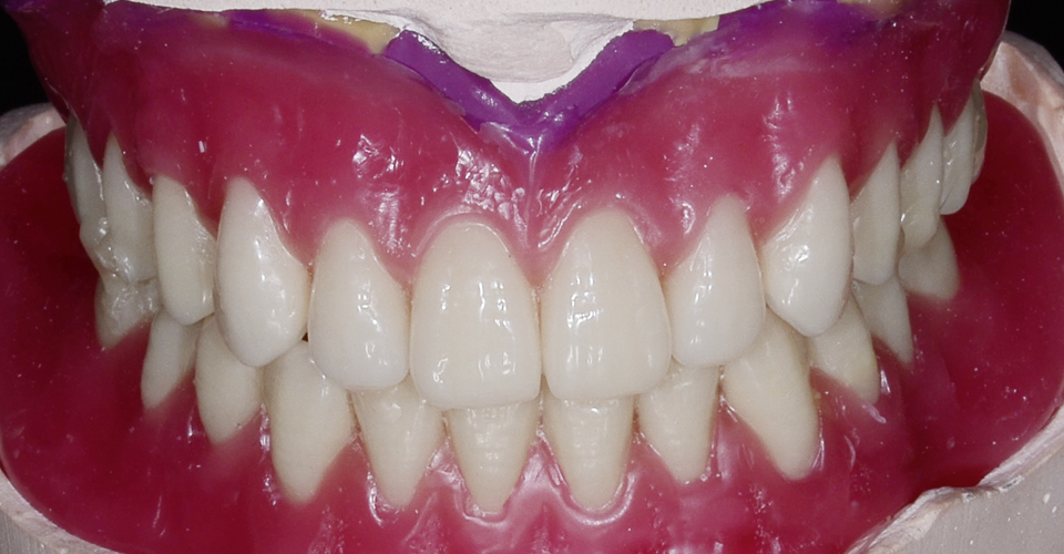 Fig. 10: A partir del registro de mordida de los montajes se pudo rearticular con precisión el maxilar superior.