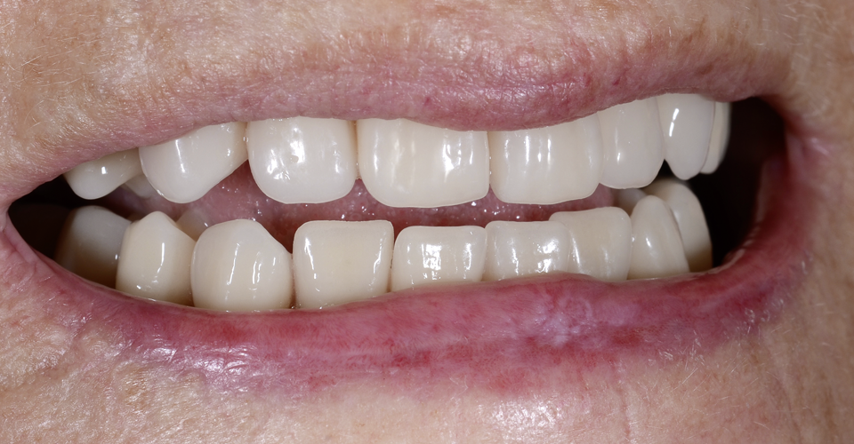 RESULTADO: La paciente quedó muy satisfecha con la naturalidad de la nueva restauración.