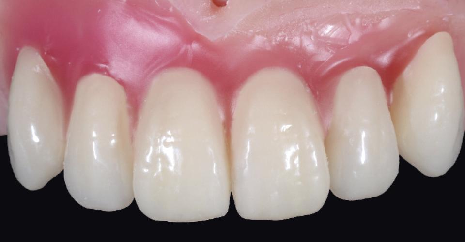 Fig. 6: En primer lugar se redujo la zona estética del duplicado superior, se sustituyó por VITAPAN EXCELL y se probó en boca.
