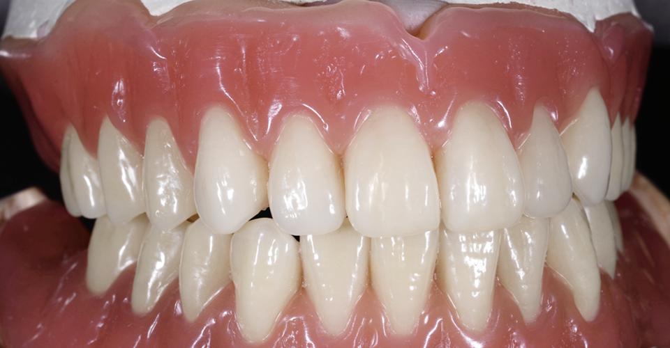 Fig. 7: El encerado final en el articulador con anatomía gingival modelada, antes de la prueba en boca.