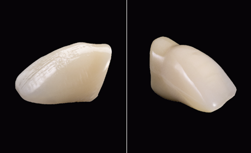 Abb. 5, 6: VITAPAN EXCELL mit natürlicher Halsgestaltung versus SR VIVODENT DCL mit stark abgesetztem Zahnhals.