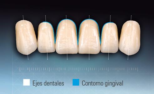 Fig. 3: Características y proporciones conforme al modelo natural, tomando como ejemplo el VITAPAN EXCELL.