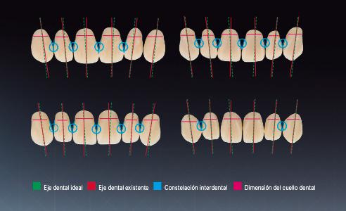 Fig. 4: Características de distintos dientes prefabricados seleccionados a modo de ejemplo. Análisis por un panel de protésicos dentales expertos.