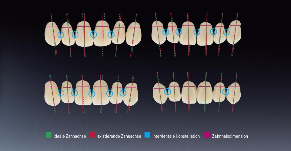 Abb. 4: Zahnmerkmale verschiedener, exemplarisch ausgewählter Zahnfabrikate. Analyse durch Zahntechniker-Expertenpanel.