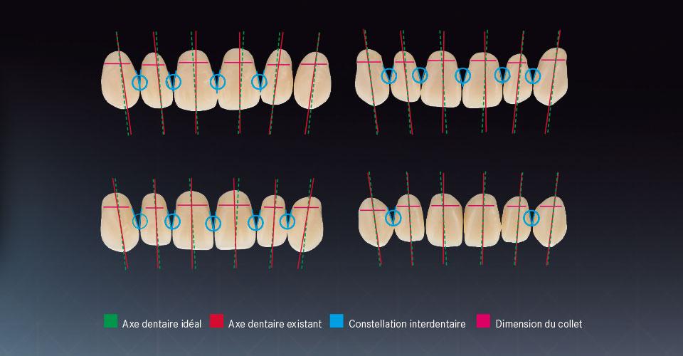 Ill. 4 : Caractéristiques des dents de différentes gammes dentaires sélectionnés à titre d'exemple. Analyse par un panel d'experts prothésistes dentaires.