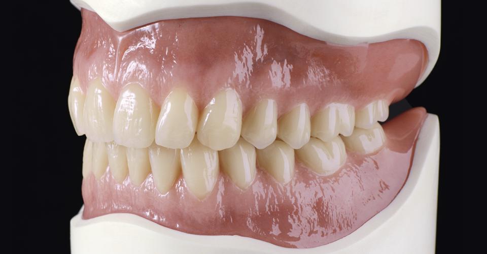 Abb. 9: Korrekte vertikale Krümmungsmerkmale erlauben einen natürlichen Übergang vom Processus Alveolaris/Jugea alveolaris über das marginale Parodont zum eigentlichen Zahn.
