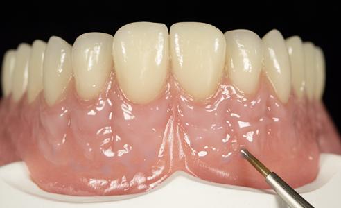 Fig. 5: La transición desde la encía adherida hacia la mucosa libre se caracterizó mediante sutiles vasos sanguíneos azulados.
