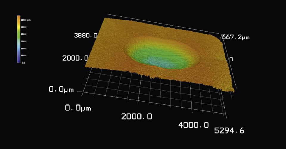 Fig. 4: Una vez analizadas las muestras mediante el microscopio láser 3D, se determinó para VITA PHYSIODENS de composite MRP un desgaste máximo significativamente menor en términos comparativos.