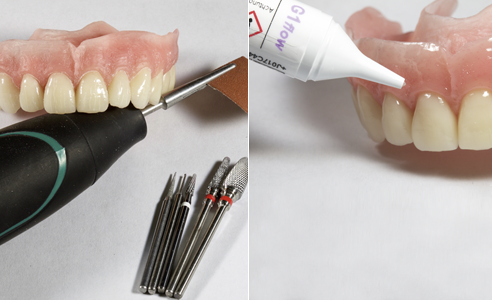 Fig. 10: La reproducción detallada permitió agilizar el acabado. Fig. 11: Se personalizaron de forma natural con VITA VM LC flow las zonas vestibulares de la base de la prótesis.
