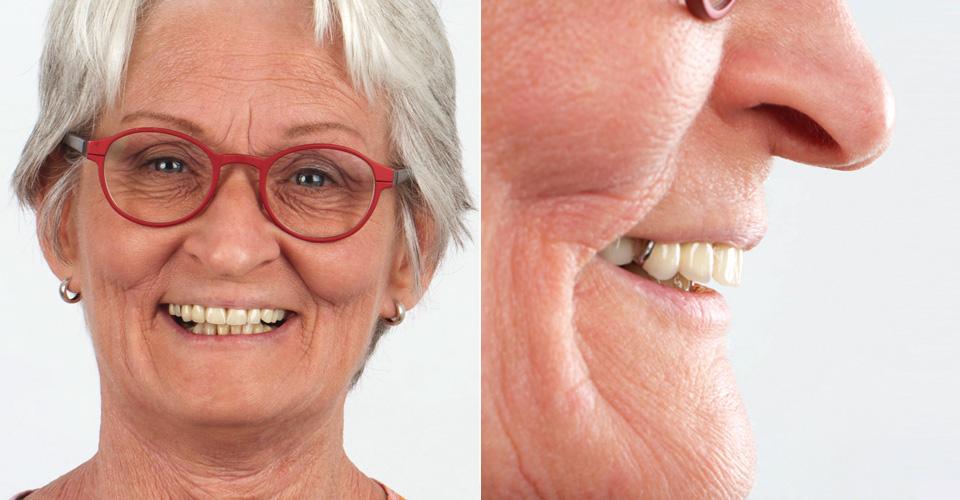 SITUACIÓN DE PARTIDA: Situación de partida con deficiencias estéticas y funcionales en el maxilar superior. Al confeccionar la nueva prótesis debía compensarse la acusada oclusión distal.