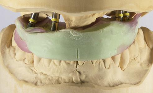 Fig. 2: Un registro de mordida implantatosoportado posibilitó la articulación precisa de ambos modelos maestros.