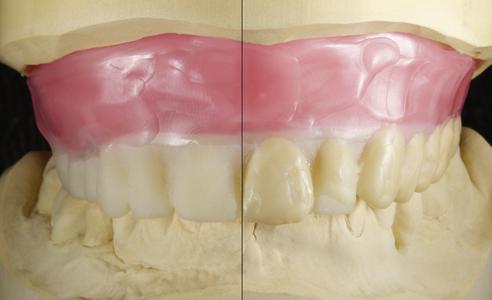 Fig. 3: En un duplicado de resina de la arcada dentaria de la antigua prótesis se realizó un encerado para definir la nueva situación deseada.