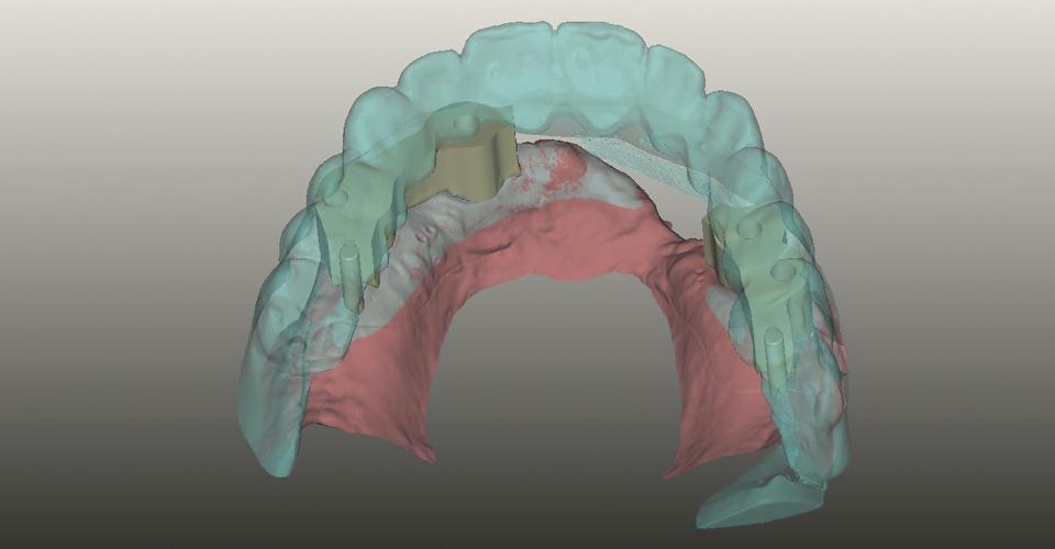 Fig. 4: Se escaneó el nuevo set-up para poder diseñar las estructuras primaria, secundaria y terciaria teniendo en cuenta las dimensiones.
