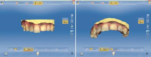 Fig. 3: Digital model of the upper jaw in the CEREC V4.2 software, generated using the CEREC Omnicam. Fig. 4: Definition of the preparation margin.
